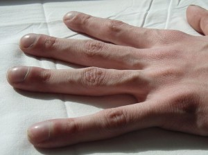 a close up of a hand showing the signs of cystic fibrosis