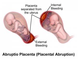 A medical illustration of Abruptio placenta