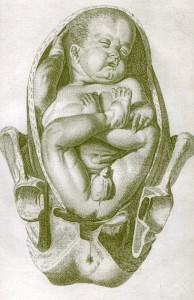 A medical illustration of a breech presentation
