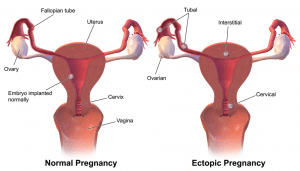 A medical diagram showing an ectopic pregnancy