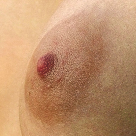 Nipple and areola Electric one -Wikipedia CC
