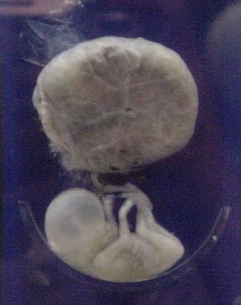 A human fetus, attached to placenta at 12 weeks National Museum of Health and Medicine Public Domain