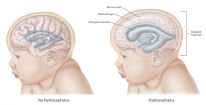 medical ilustration showing effects of hydrocephalus on the brain and cranium.