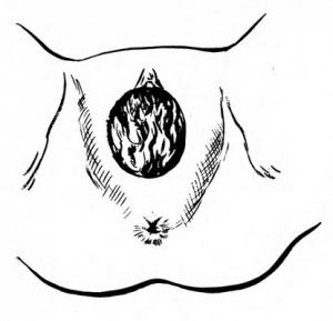 a medical illustration of Crowning