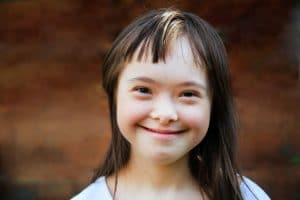 beautiful girl with Down Syndrome